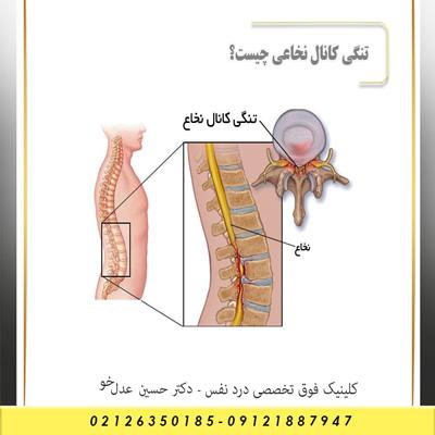 تنگی کانال نخاعی چیست؟