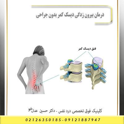 درمان بیرون زدگی دیسک کمر بدون جراحی