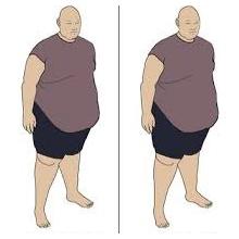 اضافه وزن و آرتروز زانو