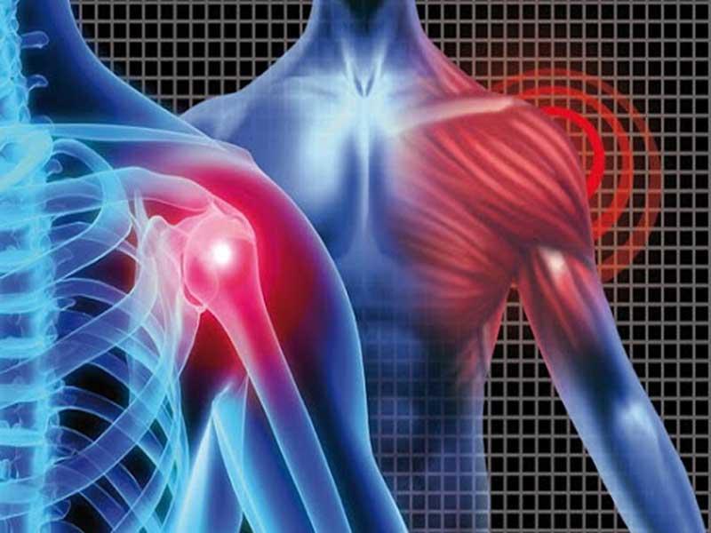 از علل تا درمان دردهای شانه
