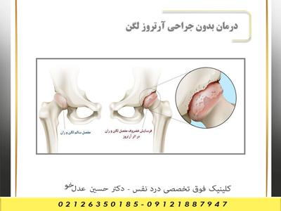 درمان بدون جراحی آرتروز لگن