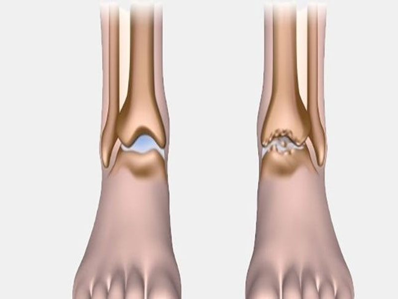 درمان بدون جراحی آرتروز مچ پا