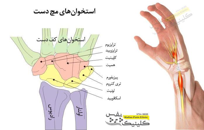 استخوان-های-مچ-دست